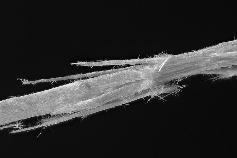 The Hidden Asbestos Epidemic